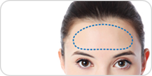 forehead implant